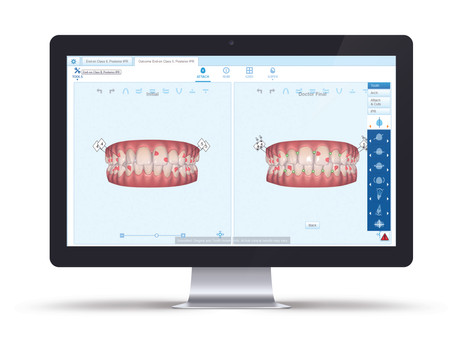 What Are The Point of Differences Between Invisalign And Traditional Braces?