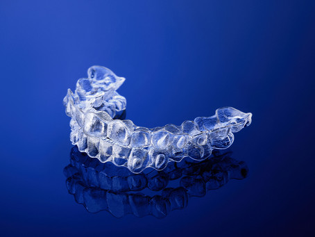 FIVE Reasons Why Clear Aligners in Australia are Top Choice for Teeth Alignment