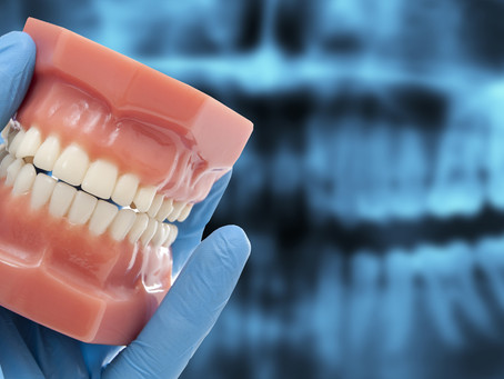 How to achieve a better,faster and more predictable result with aligner treatment planning