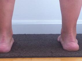 Biomecánica del pie y el gastrocnemio