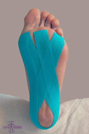 kinesiotape6_canviglobal