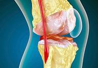 kolennyy-artroz-sustava_0.jpg