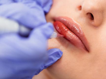 Cosmetic Tattoo: Lips