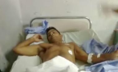Un holguinero pierde una pierna por disparos y una golpiza de la Policía