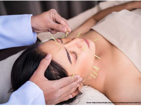 Top 5 Facts to Know About Facial Acupuncture