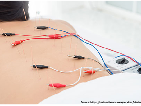Benefits of electro- acupuncture