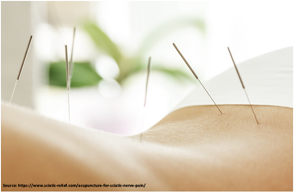 Acupuncture therapy in Mumbai