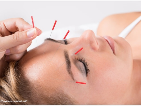 Acupuncture for headaches and migraines in Mumbai central