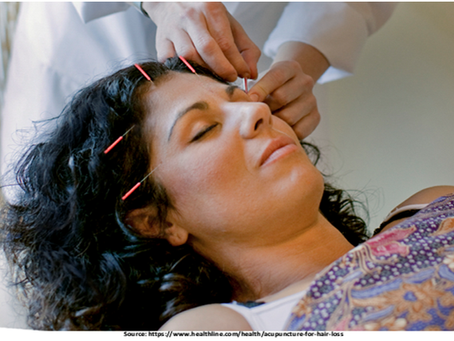 Can Acupuncture Treat Hair Loss, or Is It a Myth?
