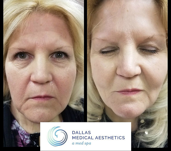 Botox, Dysport, Juvederm, Restylane| | Dallas Medical Aesthetics