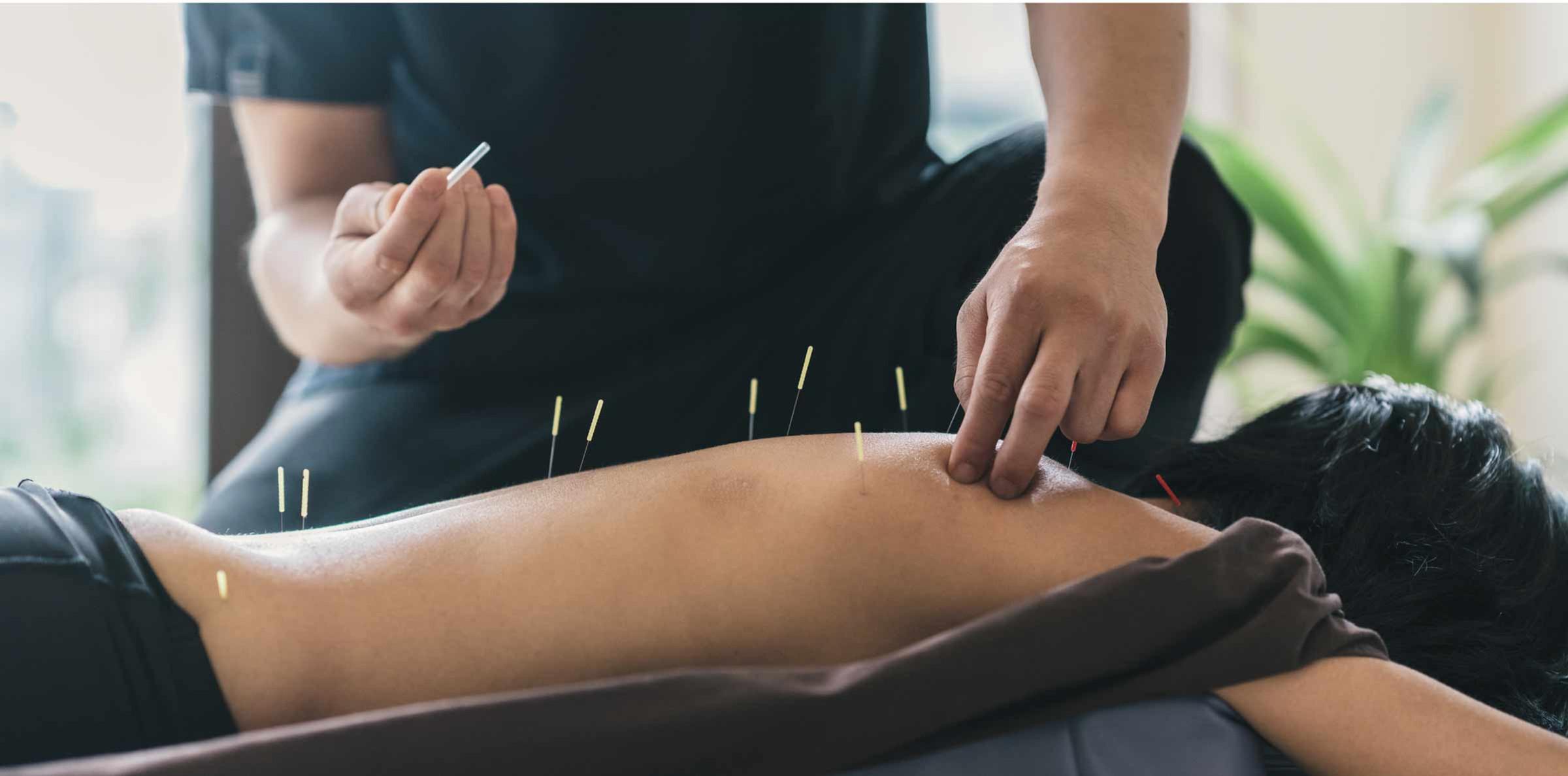 Acupuncture Light Tx