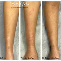 STRETCH MARK REMOVAL, BURNS & CAMOUFLAGE
