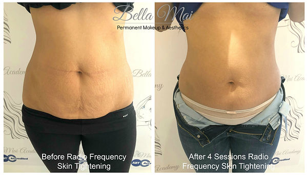 Non Surgical Body Contouring Skin Tightening Treatment Essex