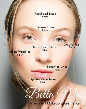 Anti Wrinkle & Dermal Filler Treatments Essex