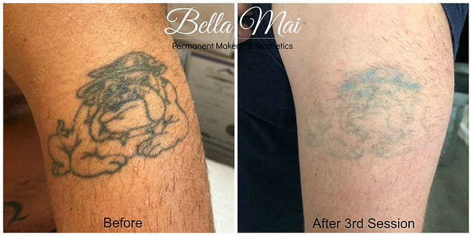 Laser Tattoo Removal Treatment Essex