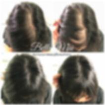 Scalp Micropigmentation Hair Tattoo Essex
