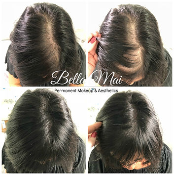 Bella Mai Scalp Micropigmentation Hair Tattoo Treatment Essex