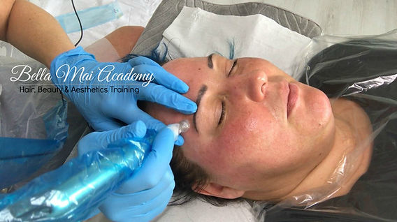 VTCT Level 4 Skin Needling Training Course Essex