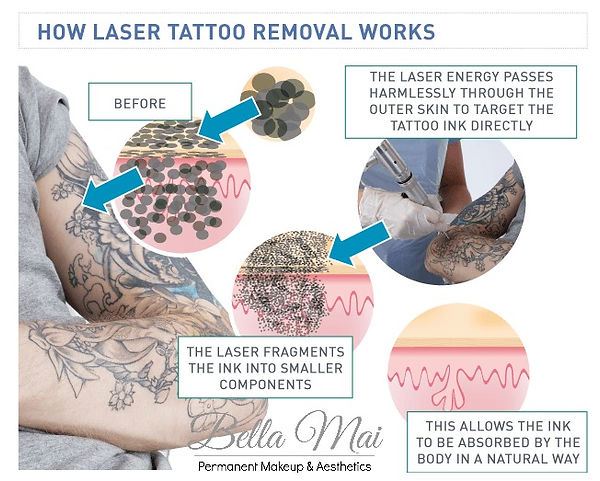 Laser Tattoo Removal Essex