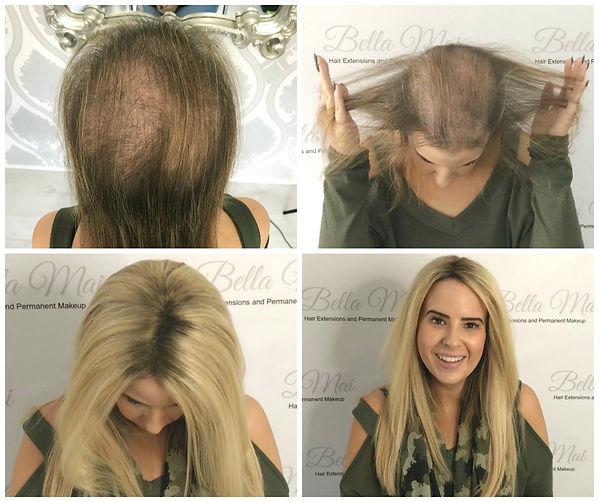 Hair Loss. Hair Integration. Wigs. Essex