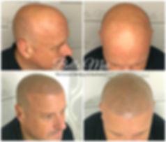 scalp micropigmentation training essex