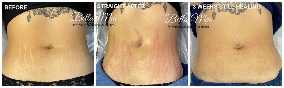 stretch mark scar camouflage tattoo thurrock essex