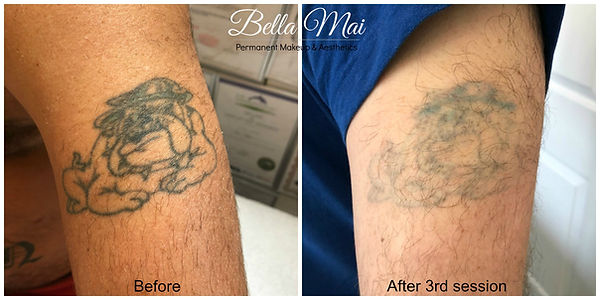 VTCT ITEC Level 5 Laser Tattoo Removal Training Course Essex
