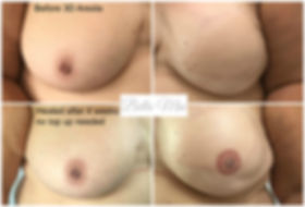 3D Areola Tattooing Essex