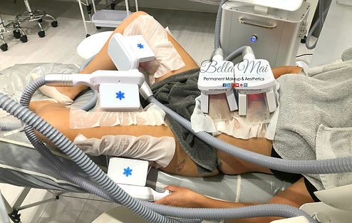 Bella Mai Fat Freezing Treatment Essex