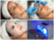 Dermaplaning Training Essex