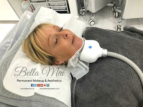 Bella Mai Chin Fat Freezing Treatment Essex