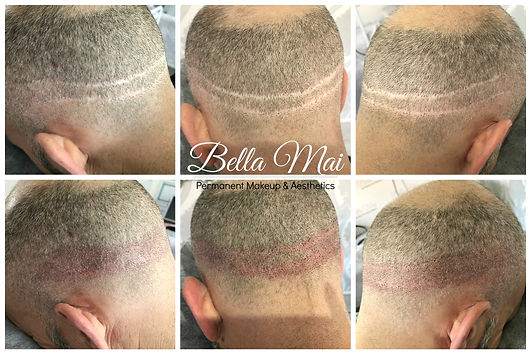 Bella Mai Scalp Micropigmentation Head Tattoo Hair Treatment Essex