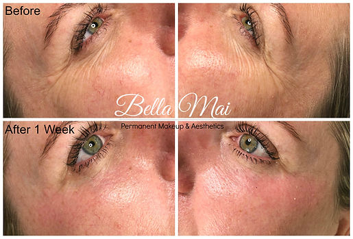 Plasma Fibroblast Treatment Essex