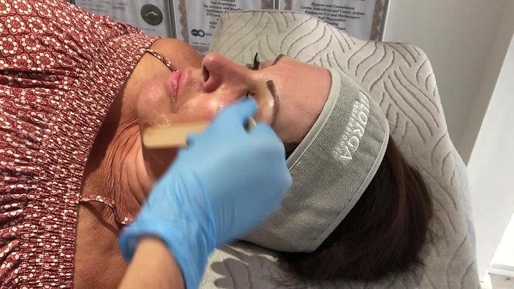 Non Surgical Facial