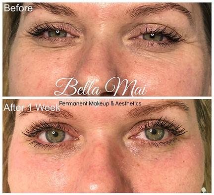 Bella Mai | IPL Skin Rejuvenation | Grays | Essex
