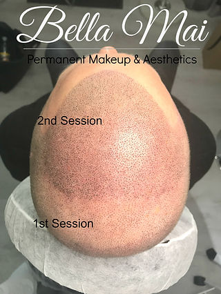 Scalp Micropigmentation Training Course Essex