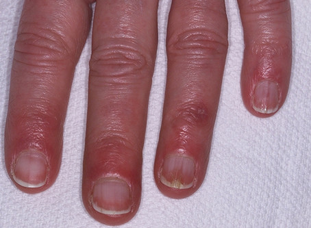 As the weather gets colder your fingers might start to itch or burn!