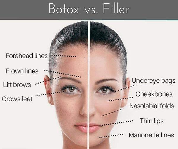 Botox vs Filler.jpg