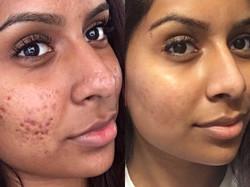 acne treatment jespasalon.jpg