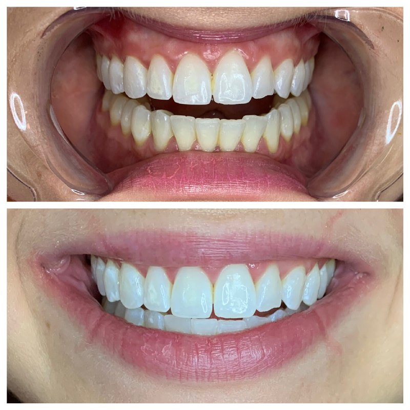 teeth whitening result 2.jpg