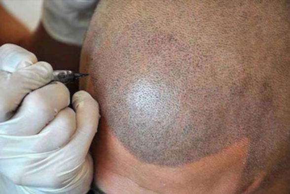 scalp%20pigmentation%20treatment%20at%20