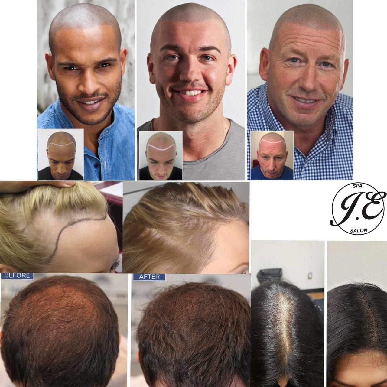 scalp pigmentations tattoo.jpg