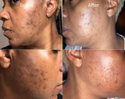 acne treatment.jpg