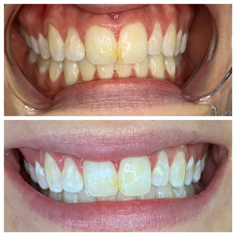 teeth whitening result 1.jpg