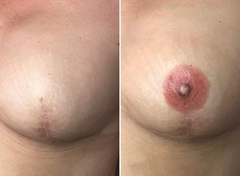 nipple breast cancer tattoo.jpg