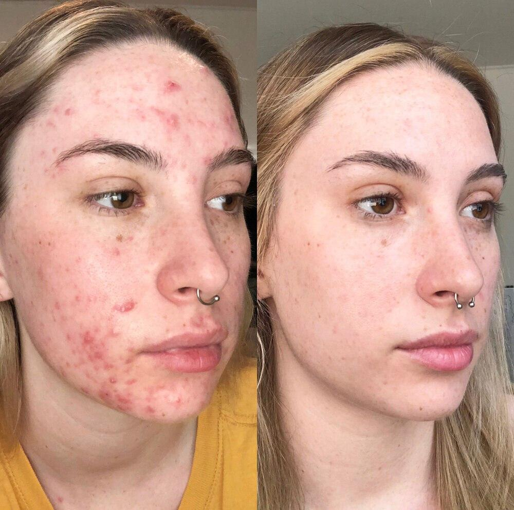 acne treatment near me.jpg