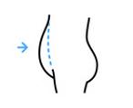 Liposukcja brzucha