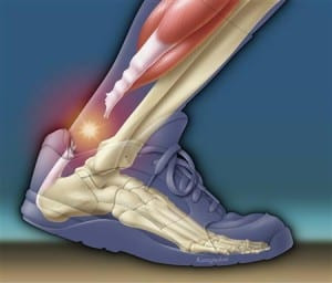 Minimally Invasive Achilles Tendon Repair