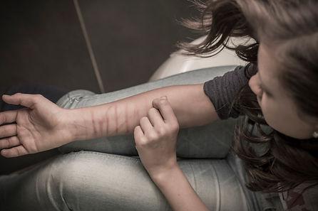 automutilation-femme-bras-full-13058603.