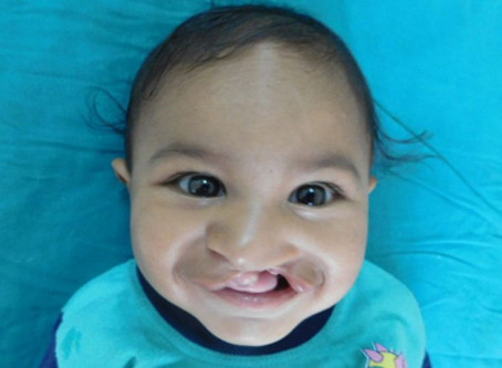 Breastfeeding a Baby with Cleft Palate